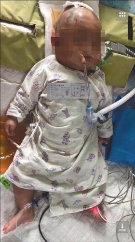 东莞女婴被高楼坠落苹果砸中 警方提取全楼DNA查到抛物者