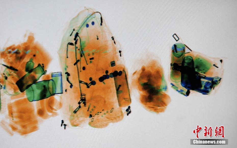 X光机下宛如水彩画