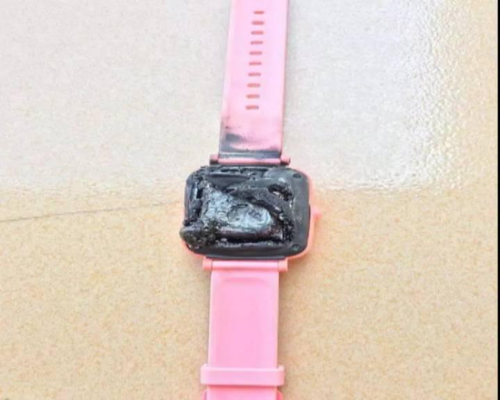 電話手表突然自燃 江海區一小學生被燙傷