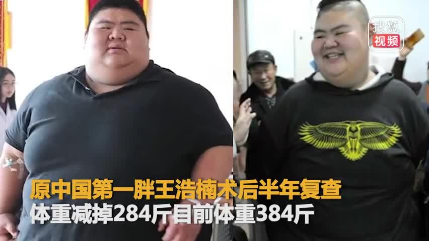 """""""山东第一胖""""半年减284斤长高3厘米"""