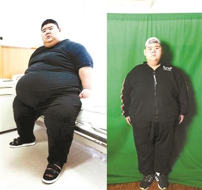 """中国""""第一胖""""半年多长高2厘米 减重284斤"""