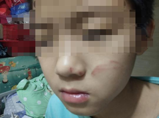 江门一小学生午睡睡过头竟被老师用尺子打伤