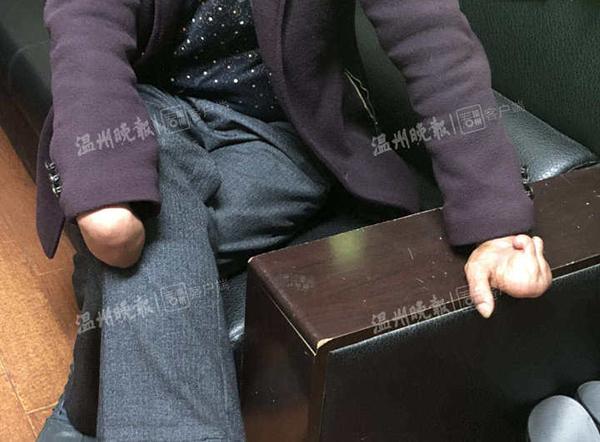 温州一男子无证驾驶被拘:双手仅一根手指还开手动挡面包车